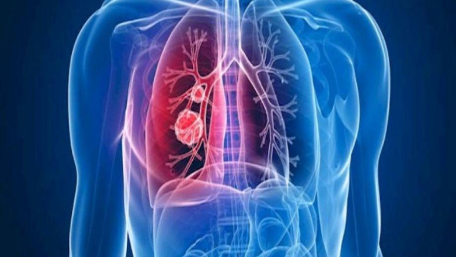 Hipertensión Arterial Pulmonar, ¿qué es? - El Heraldo de..