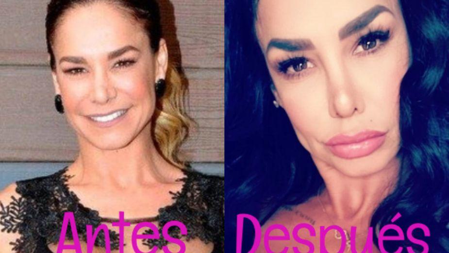 Así dejaron las cirugías y el botox a Liz Vega: FOTO