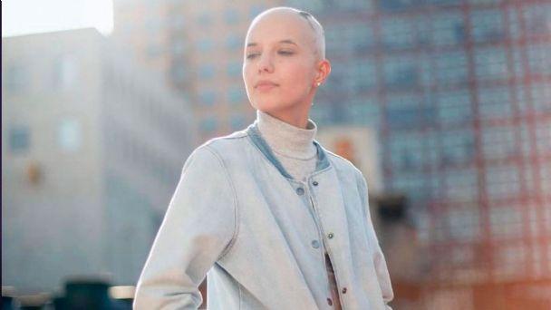 Modelo mexicana comparte su experiencia de enfrentar la alopecia areata  desde los 3 años I PODCAST | El Heraldo de México
