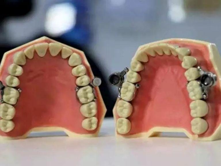 """Dieta extrema! Crean dispositivo para cerrar dientes con un candado y poder  adelgazar más """"fácil""""   El Heraldo de México"""