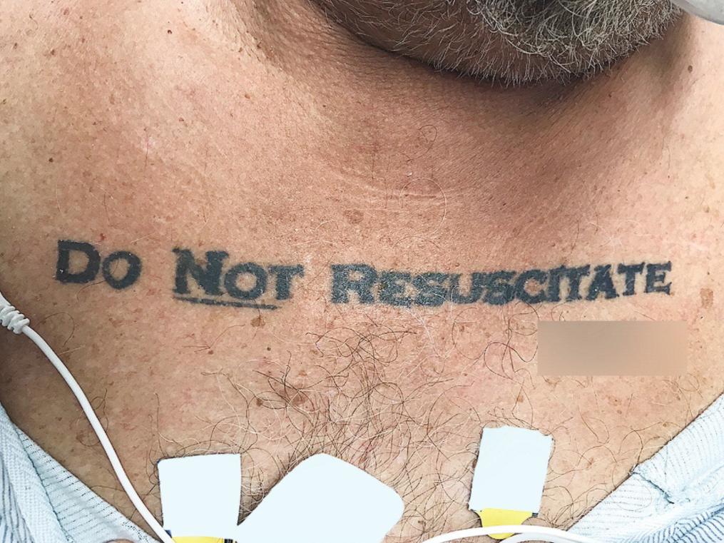 El tatuaje que desató un dilema ético en el quirófano